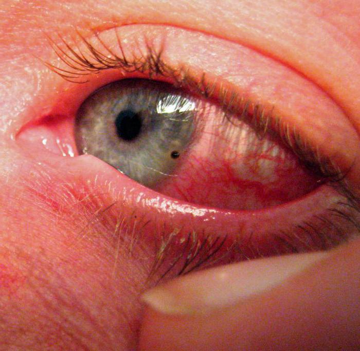 болят глаза после сварки что делать дома
